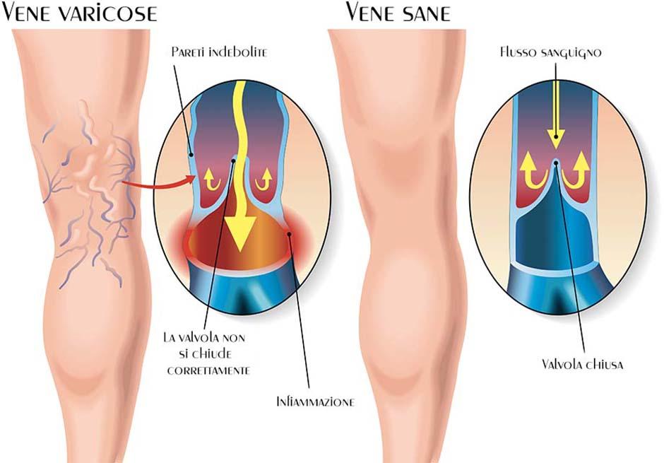 insufficienza-venosa-cronica